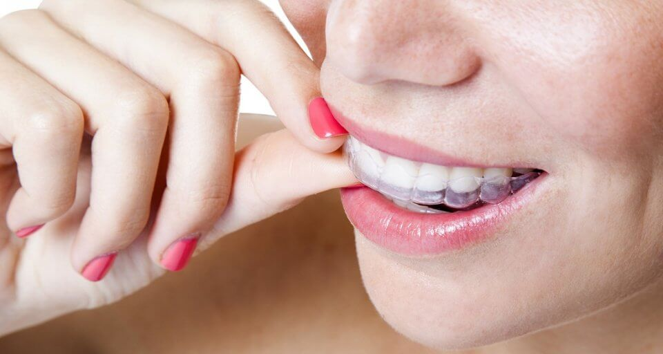 How to Make DIY Braces Out of Dental Floss?