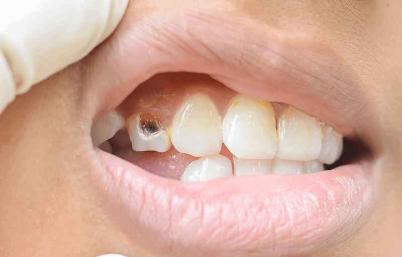 What To Do If You Have A Loose Or Displaced Tooth